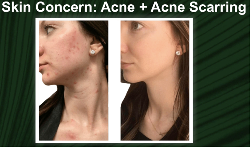 AFTER 2 VI Peel and 2 Microneedling Treatments
